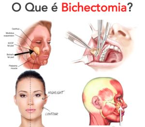 bichectomia-well-being-dr-sampaio