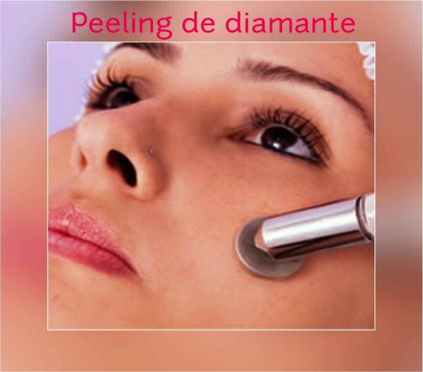 peeling-de-diamante